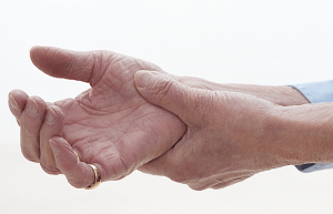 Alternativno zdravljenje - artritis